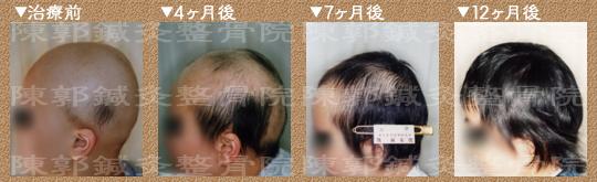 円形 脱毛 症 子供